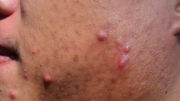 What Are the Symptoms of Different Types of Acne?
